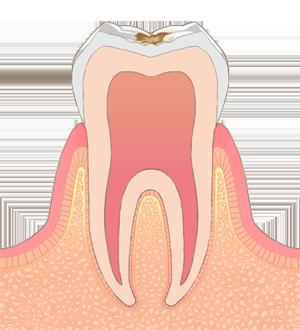 恋ヶ窪 神山歯科医院 虫歯 C1