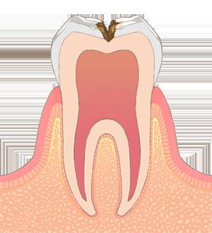 恋ヶ窪 神山歯科医院 虫歯 C2